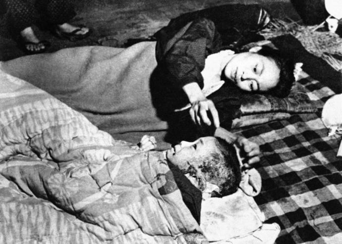 Japan Hiroshima Atom Bomb Victims